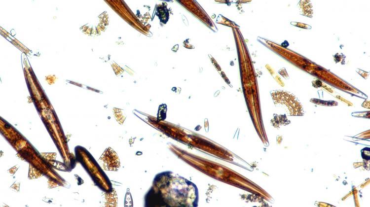 A cluster of 'live' diatoms under a light microscope. Credit: University of Lodz