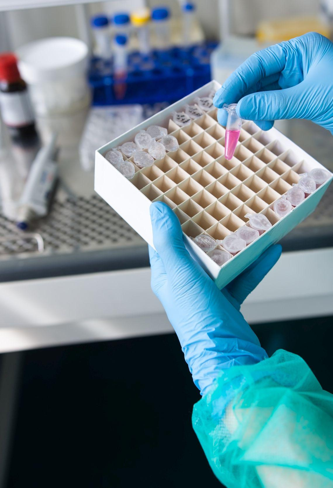 Human cell culture sample studied in research laboratory for pro